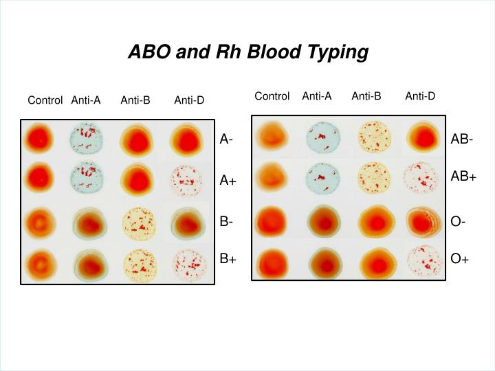 ABO and Rh Blood Typing