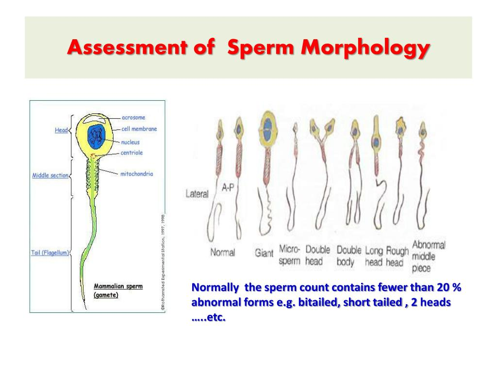 Ppt - Semen Analysis Powerpoint Presentation - Id2014344-5365