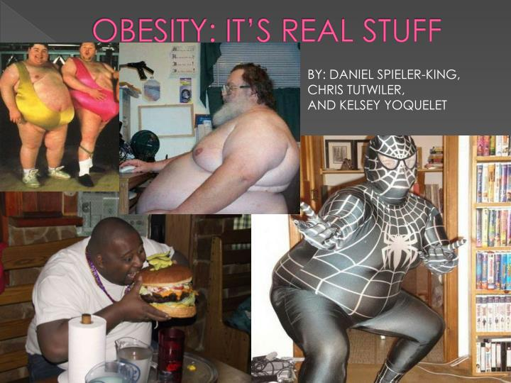 obesity it s real stuff n.