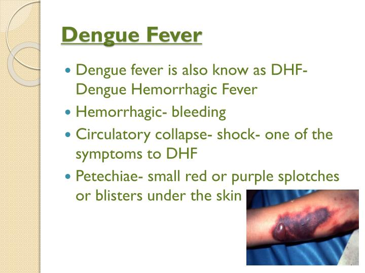 virulent dengue fever The spread of both mosquito vectors and viruses has led to the resurgence of epidemic dengue fever  that less virulent dengue virus strains.