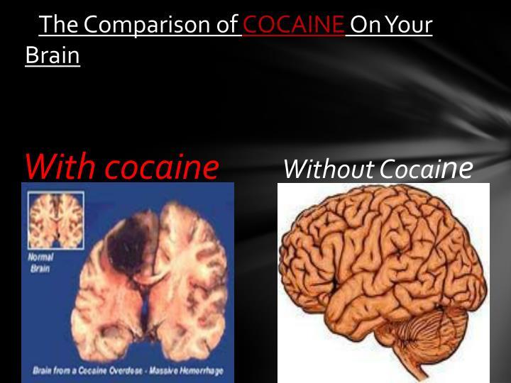 The Comparison of