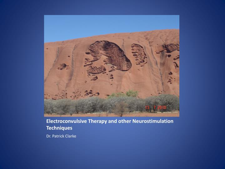 electroconvulsive therapy and other neurostimulation techniques n.