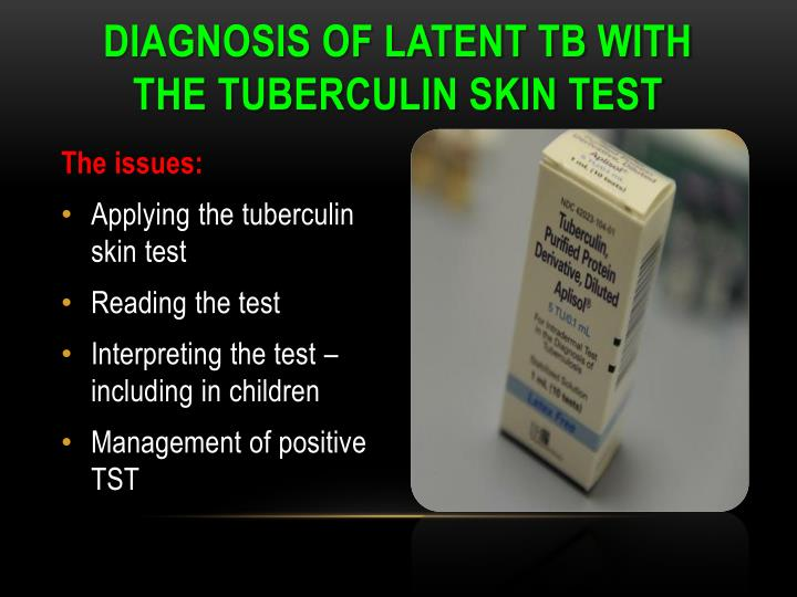 Diagnosis of latent TB with the Tuberculin skin test