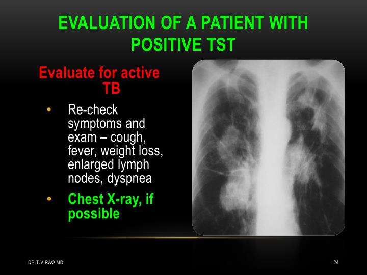 Evaluation of a patient with positive TST
