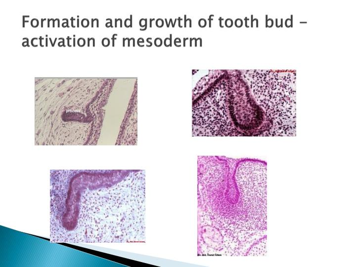 Formation and growth of tooth bud - activation of mesoderm