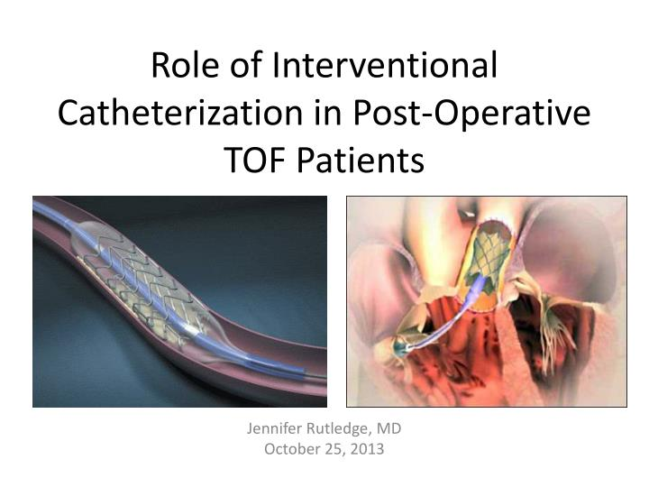 role of interventional catheterization in post operative tof patients n.