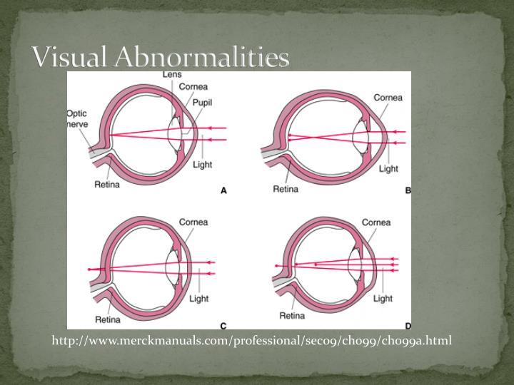 Visual Abnormalities