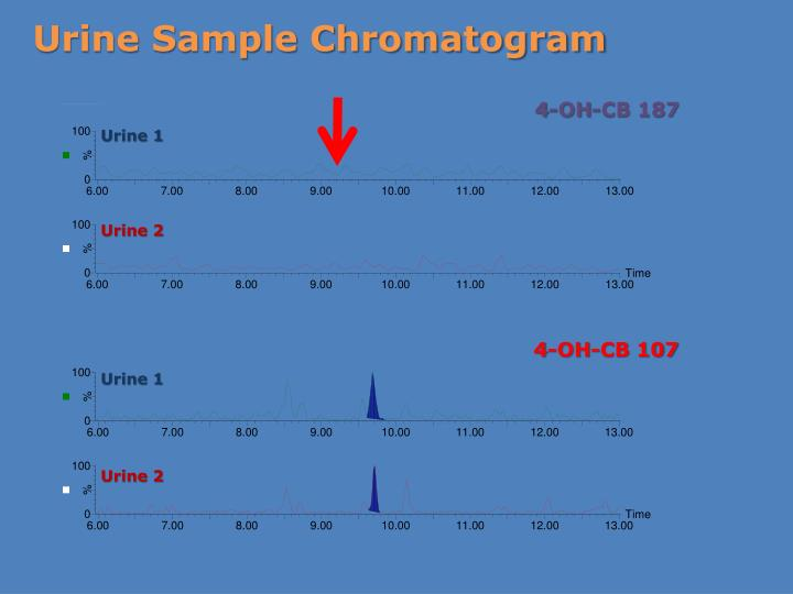 Urine Sample Chromatogram