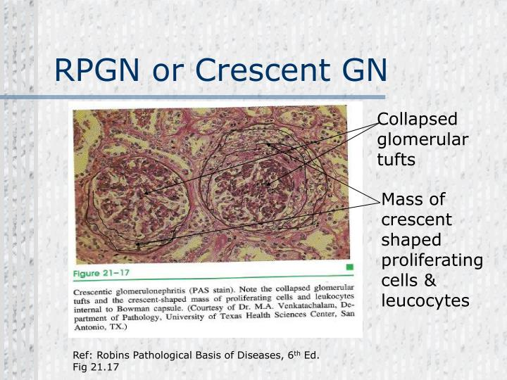 RPGN or Crescent GN