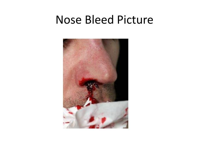 Nose Bleed Picture