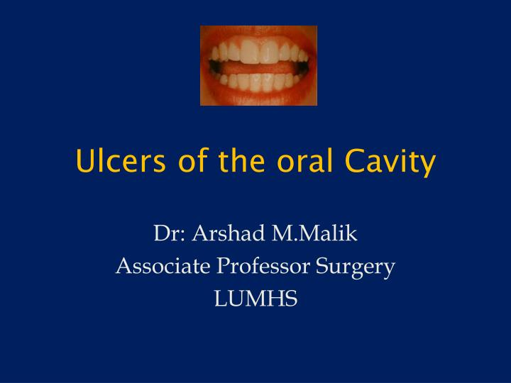ulcers of the oral cavity n.
