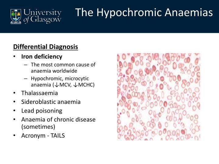 The Hypochromic