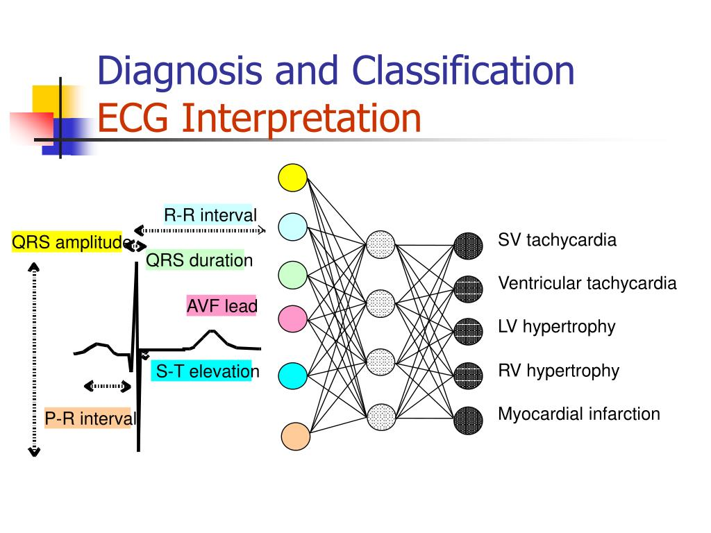 PPT - ECG SIGNAL RECOGNIZATION AND APPLICAITIONS PowerPoint