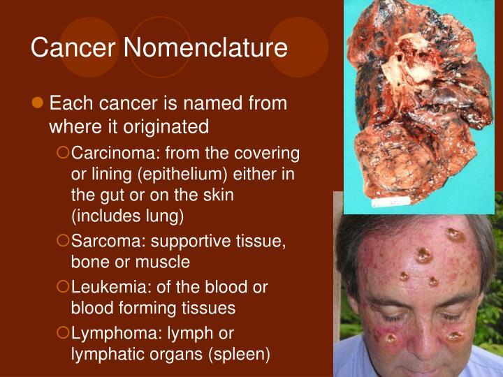 Cancer Nomenclature