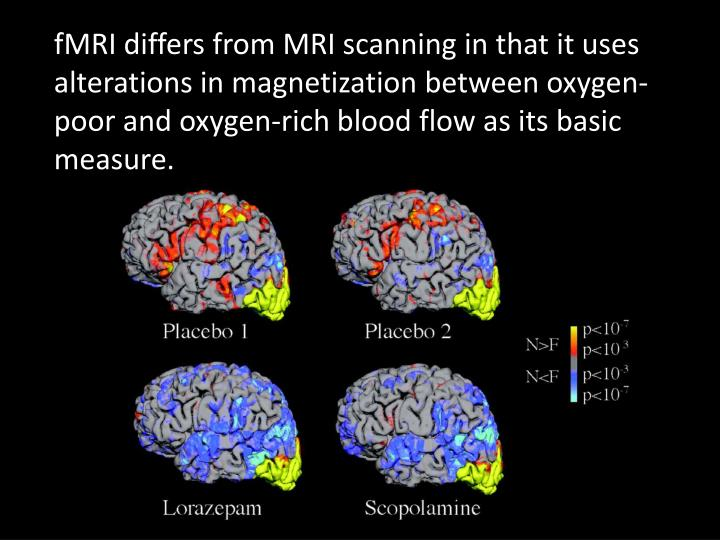 FMRI differs from MRI scanning in that it uses alterations in magnetization between oxygen-poor and ...