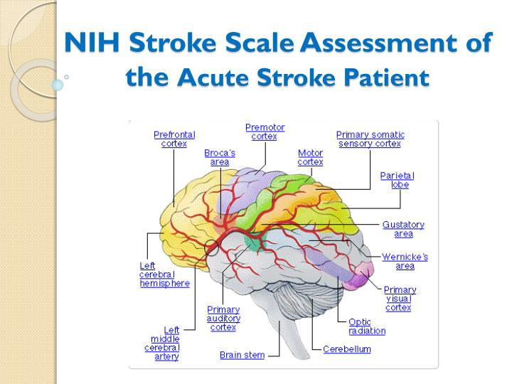 PPT - NIH Stroke Scale Assessment of the Acute Stroke