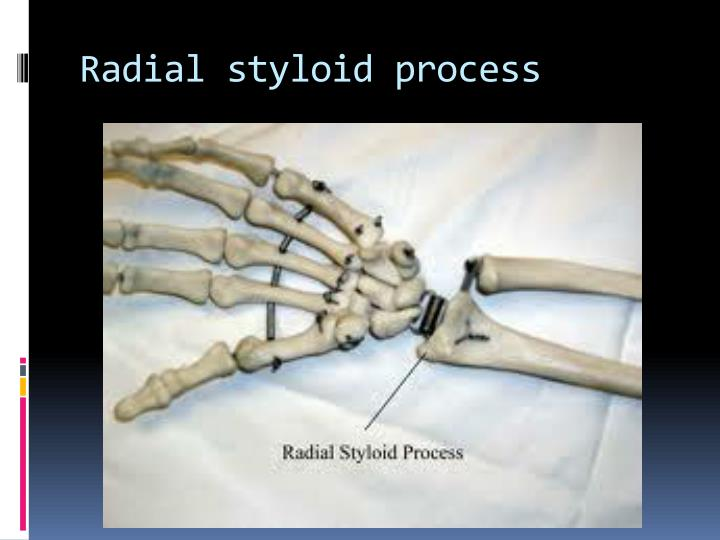 Radial styloid process