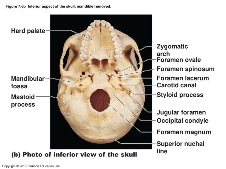 Figure 7.6b  Inferior aspect of the skull, mandible removed.