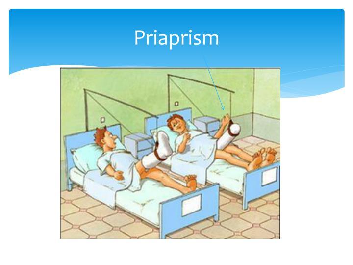 Priaprism