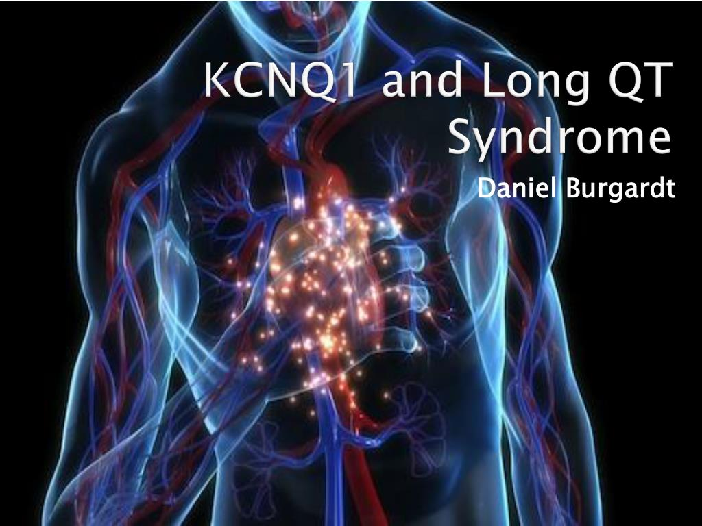 Ppt long qt syndrome powerpoint presentation id:3226735.