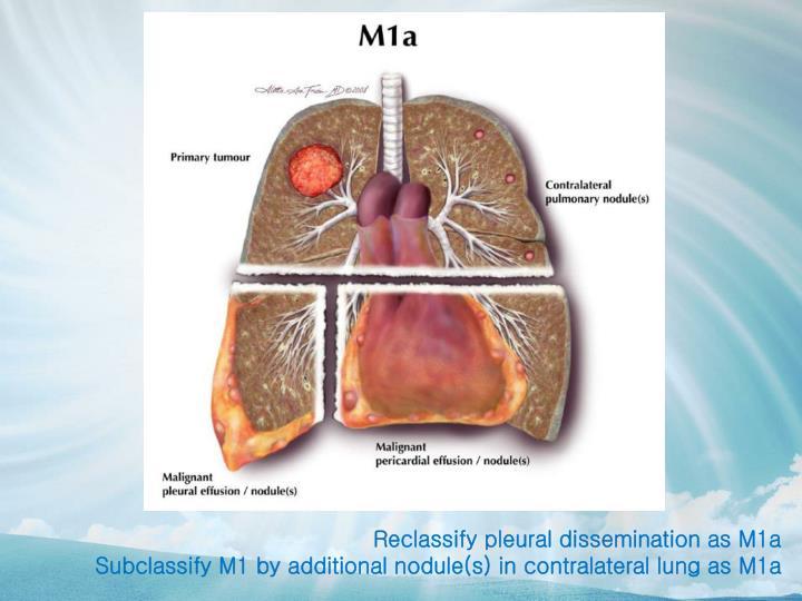 Reclassify pleural dissemination as M1a