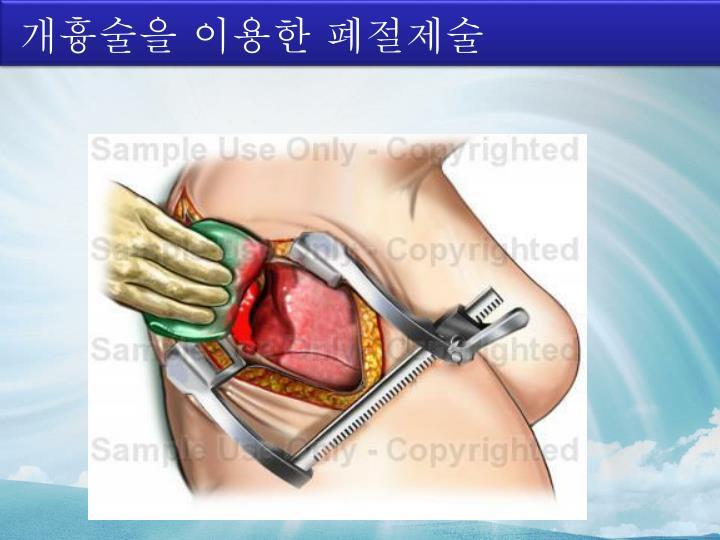 개흉술을 이용한 폐절제술