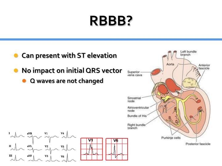 RBBB?