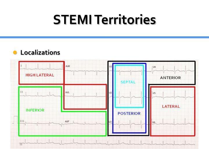 STEMI Territories