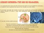 c ncer cerebral por uso de celulares