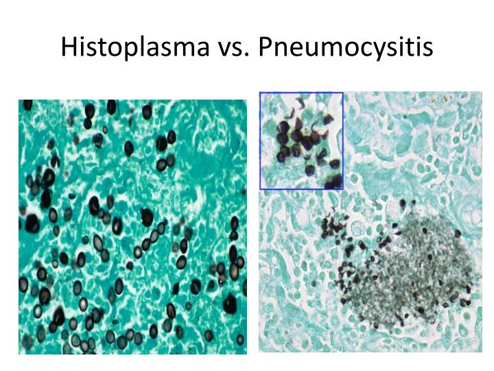 Histoplasma