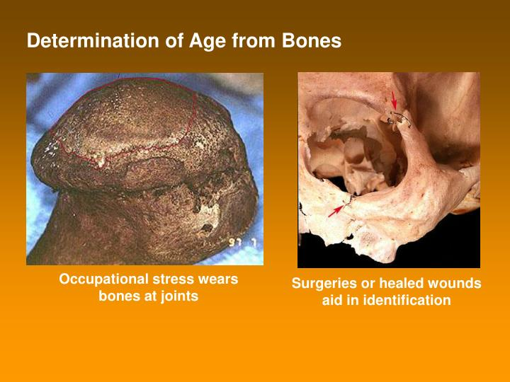 Determination of Age from Bones