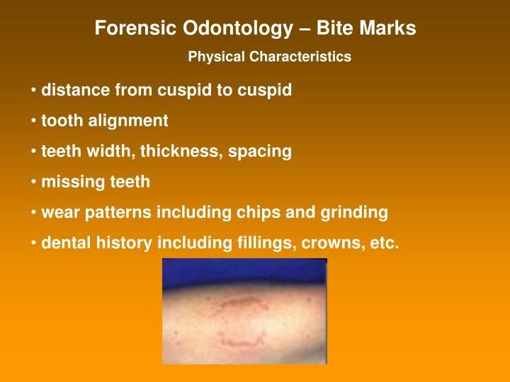 Forensic Odontology – Bite Marks