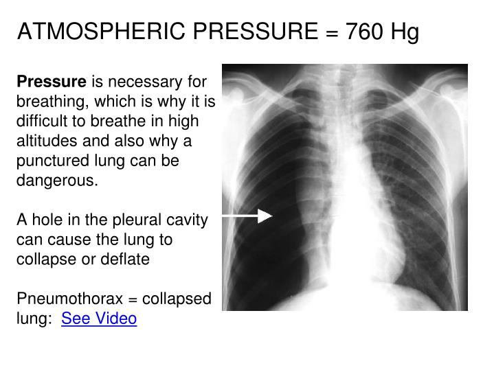 ATMOSPHERIC PRESSURE = 760 Hg