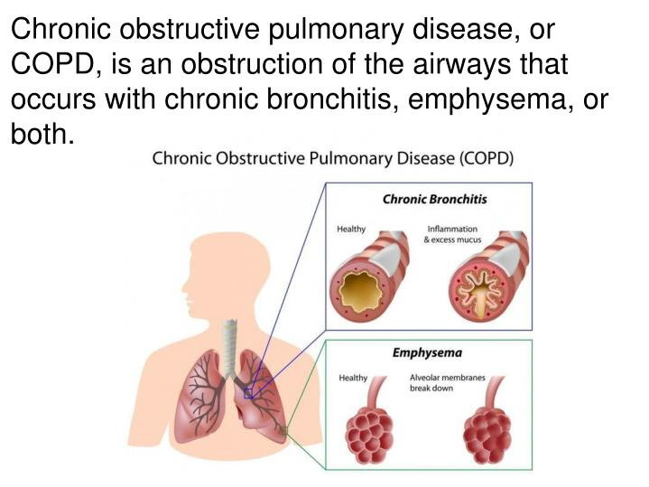 Chronic obstructive pulmonary disease, or