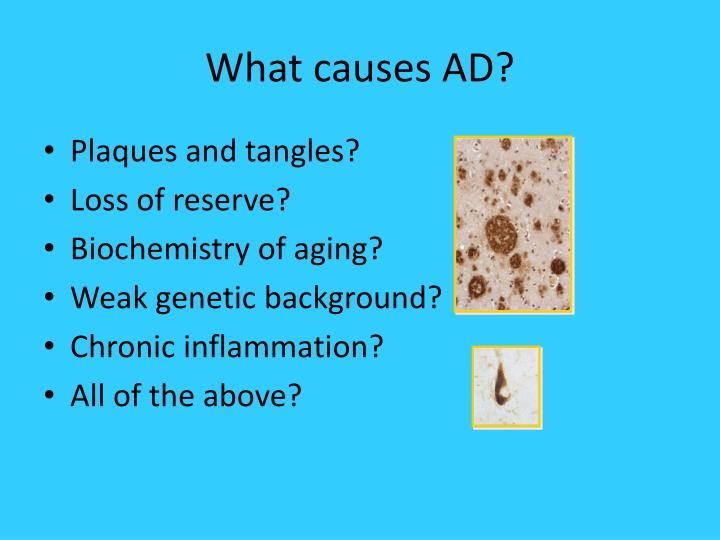 What causes AD?