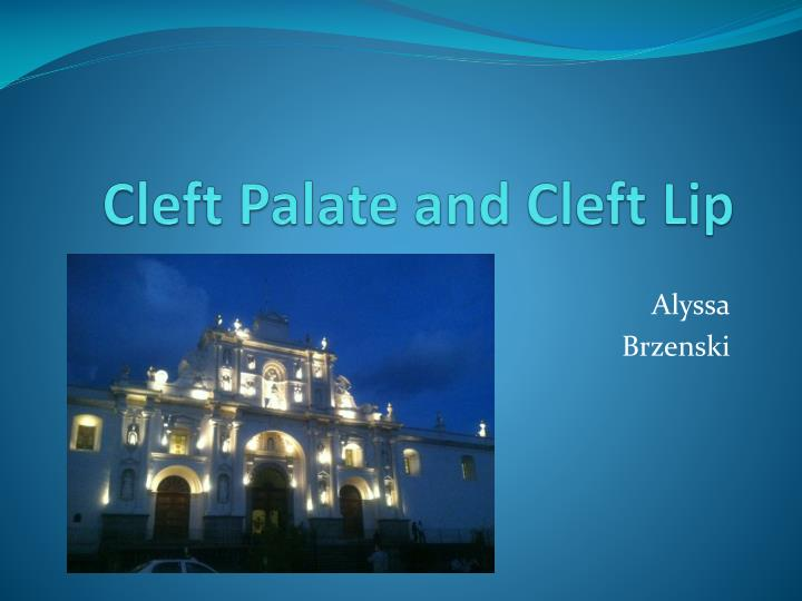 cleft palate and cleft lip n.