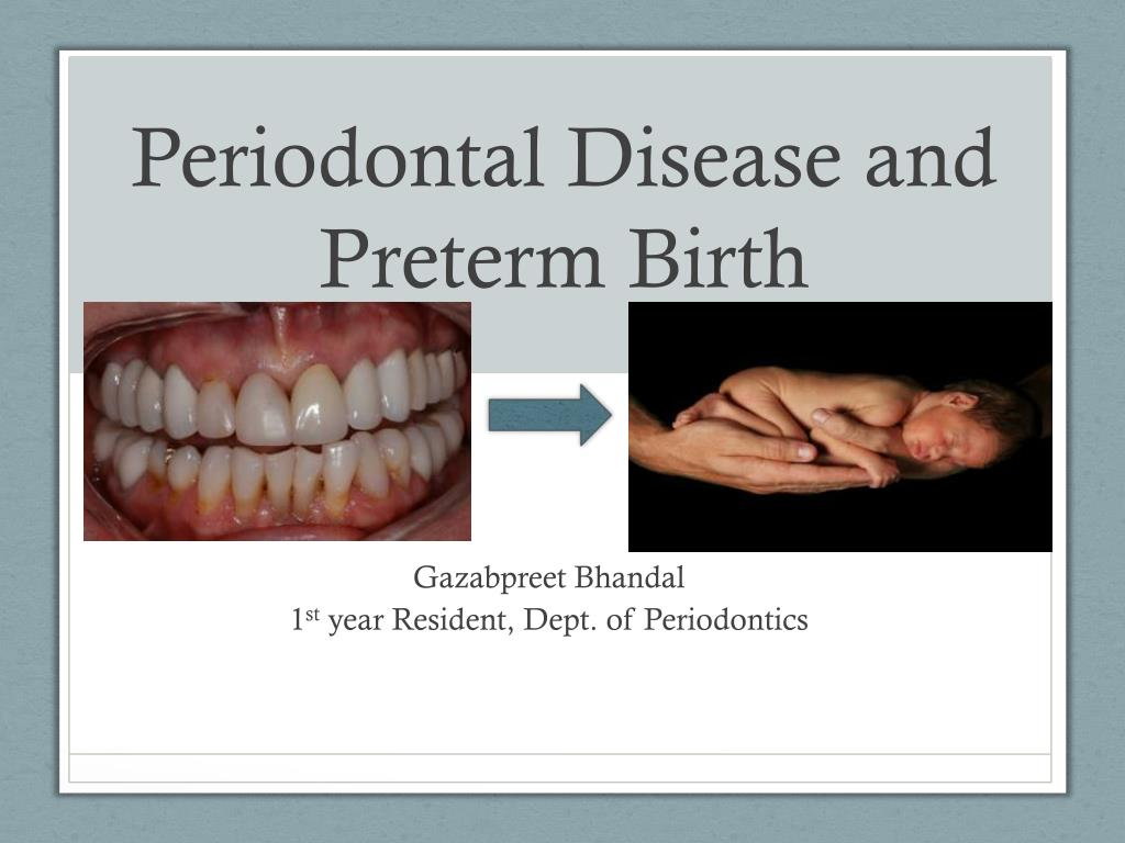 ppt - periodontal disease and preterm birth powerpoint presentation