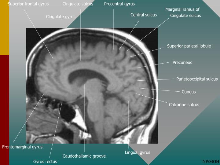 Ppt Normal Cortical Anatomy Powerpoint Presentation Id2068105