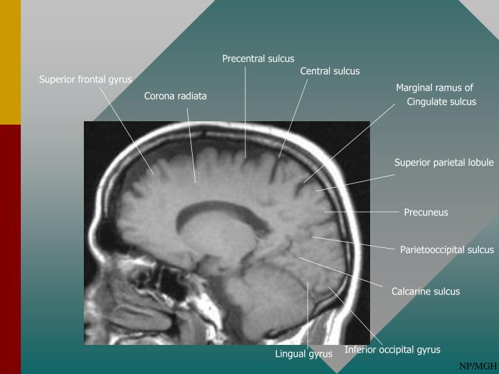 PPT - Normal Cortical Anatomy PowerPoint Presentation - ID:2068105