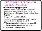 procedures performed on beating heart