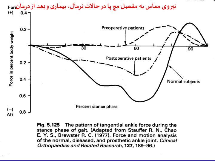 نیروی مماس به مفصل مچ پا در حالات نرمال، بیماری و بعد از درمان