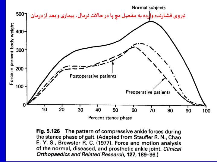نیروی فشارنده وارده به مفصل مچ پا در حالات نرمال، بیماری و بعد از درمان