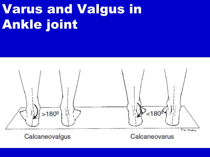 Varus and Valgus in Ankle joint