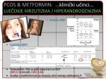 pcos metformin klini ki u inci lije enje hirzutizma hiperandrogenizma