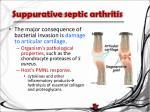 suppurative septic arthritis1
