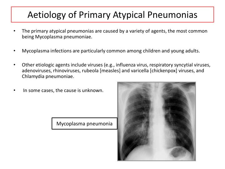 Aetiology of Primary Atypical Pneumonias