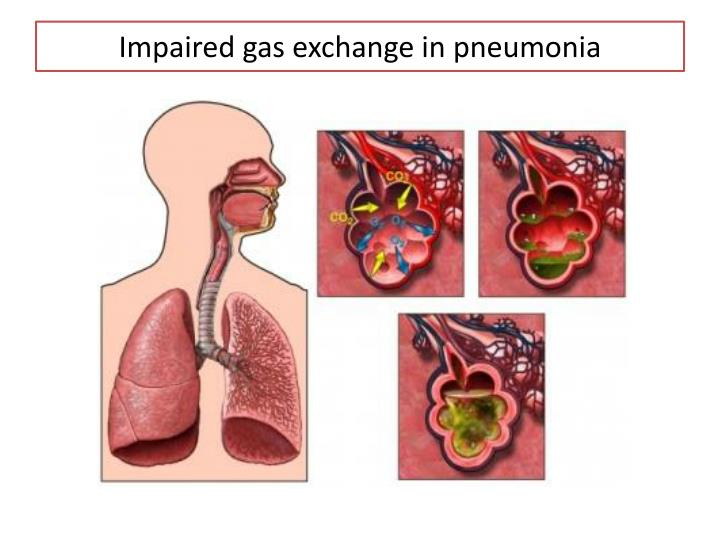 Impaired gas exchange in pneumonia