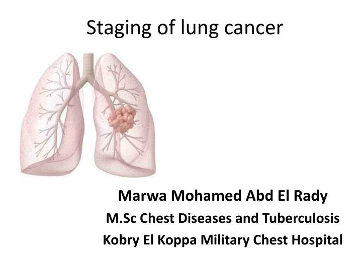 staging of lung cancer n.