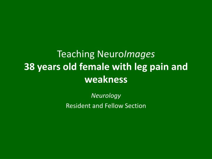 teaching neuro images 38 years old female with leg pain and weakness n.