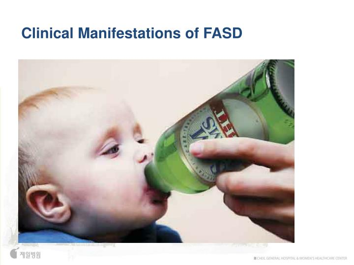 Clinical Manifestations of FASD